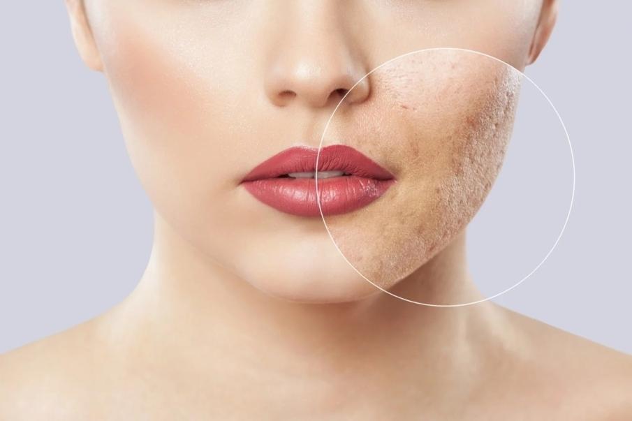 ¿Cómo maquillar acné para que no se note?
