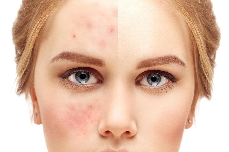 Consejos generales para pieles con acné