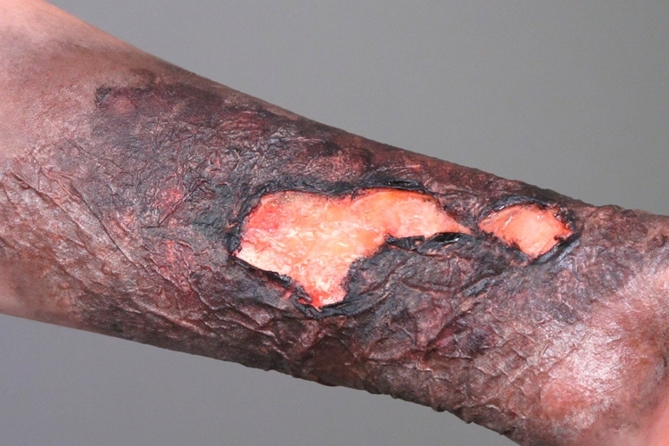 El Látex líquido sirve para crear quemaduras muy reales