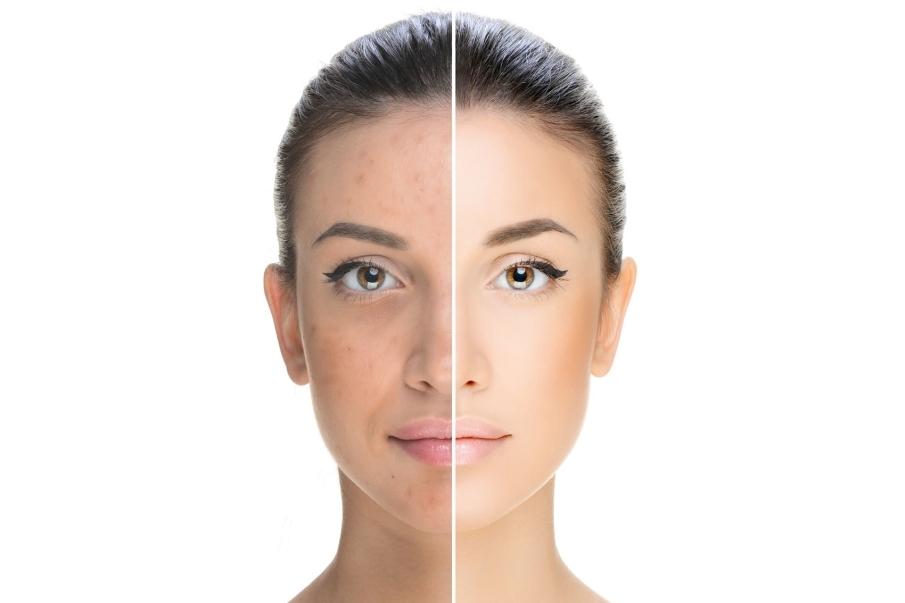 Maquillaje con acné Cómo usarlo para que no se note