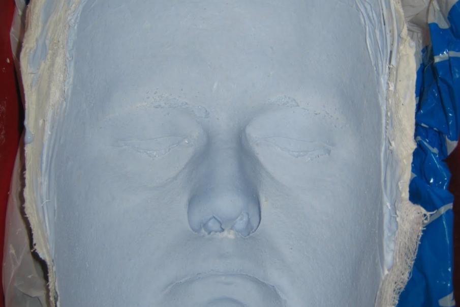 Punto 4: Retirada del molde negativo