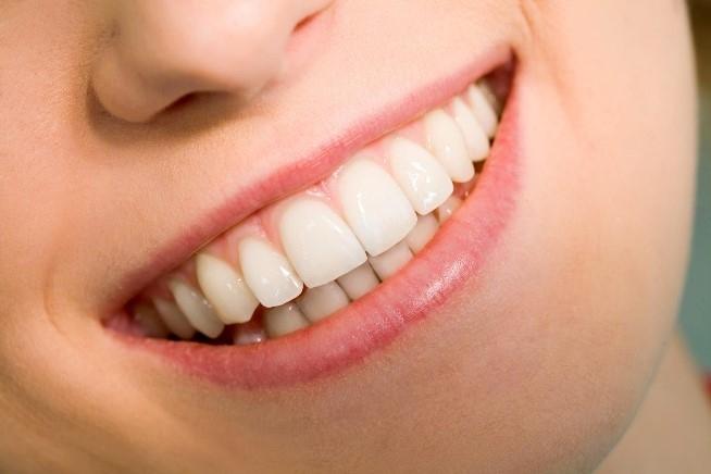 Tipos de bocas - bocas grandes