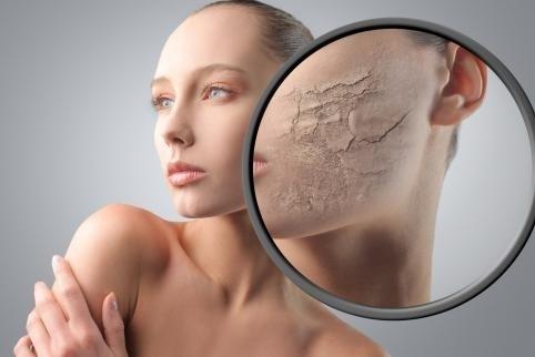 Utilizar productos no adecuados para el tipo de piel que se posee